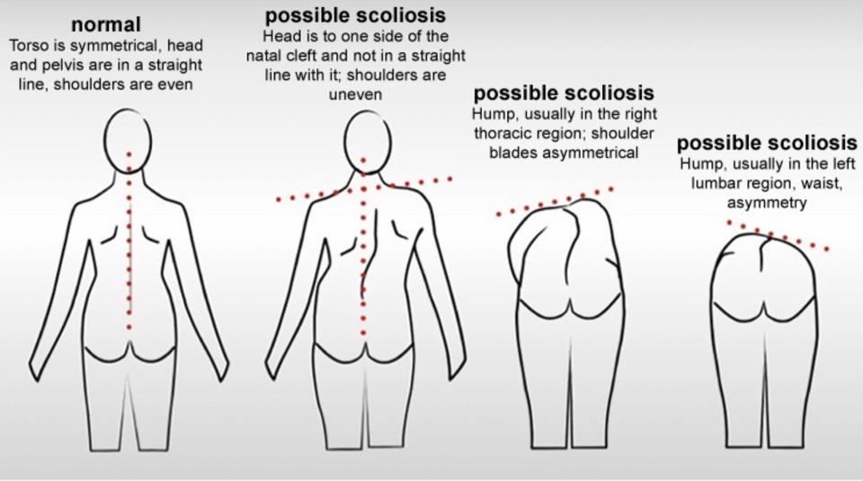 Scoliosis Enzo Pierro Massage Therapy